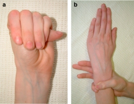 marfan-syndrome-hand-diagnosis