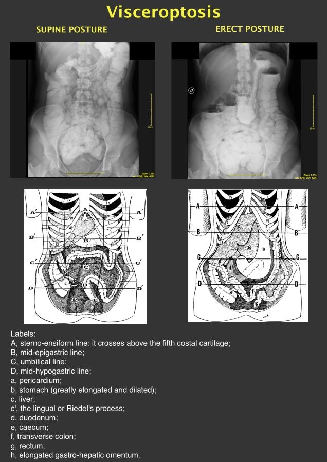 visceroptosis.jpg
